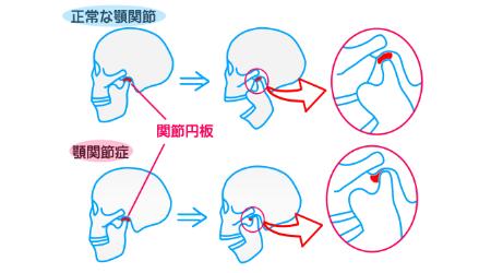 なぜ顎関節症になるのか?