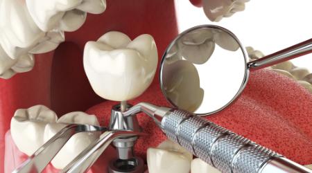 4.本歯の装着・メンテナンス